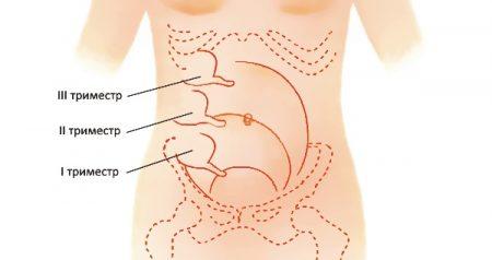 Места болей при аппендиците при беременности