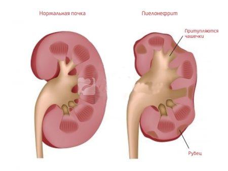 Пример нормальной и воспаленной почки