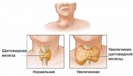 Пример нормального и увеличенного органа железы